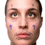 lines-for-cosmetic-surgery